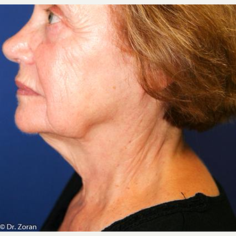 65-74 year old woman treated with Neck Lift before 3093482