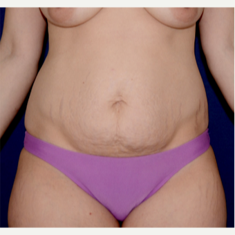 35-44 year old woman treated with Tummy Tuck, muscle repair, circumferential liposculpture before 2819594