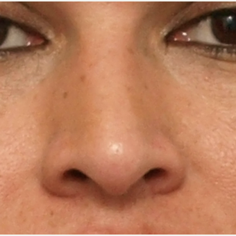 45-54 year old woman treated with Rhinoplasty before 3449099
