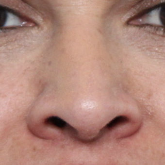 45-54 year old woman treated with Rhinoplasty after 3449099
