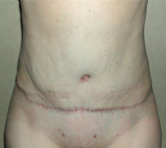 35-44 year old woman treated with Tummy Tuck after 3030466