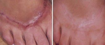 Before and After 1540 Laser Treatment of Hypertrophic Scar