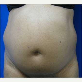 37 year old woman treated with Tummy Tuck before 3726699
