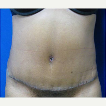 37 year old woman treated with Tummy Tuck after 3726699