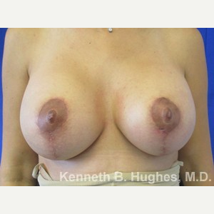 Breast Lift after 3055058