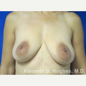 Breast Lift before 3055058