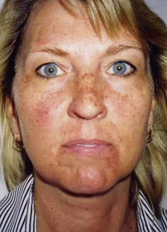 Patient treated with IPL to reduce sun damage before 1261804