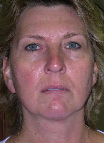Patient treated with IPL to reduce sun damage after 1261804