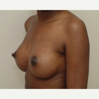 25-34 year old woman treated with Breast Implants after 3741952