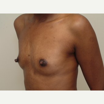 25-34 year old woman treated with Breast Implants before 3741952
