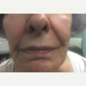 75 and up year old woman treated with Juvederm before 3175238