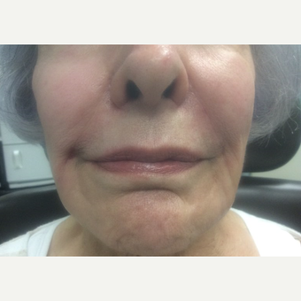 75 and up year old woman treated with Juvederm after 3175238