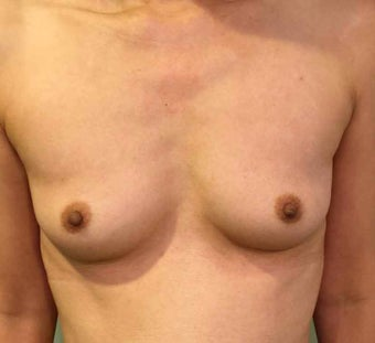 45-54 year old woman treated with Breast Augmentation before 3036519