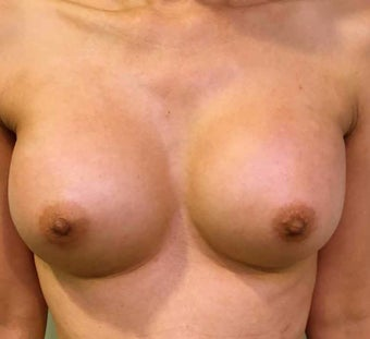 45-54 year old woman treated with Breast Augmentation after 3036519