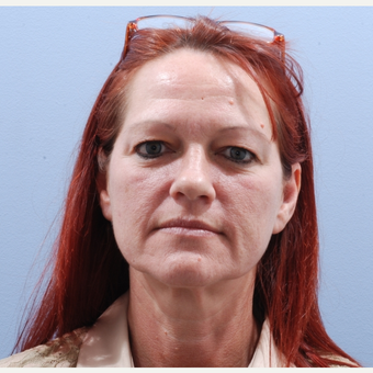 45-54 year old woman treated with Facelift before 3590188