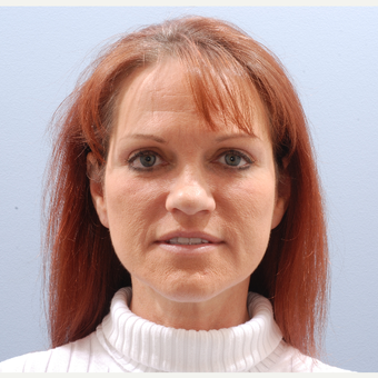45-54 year old woman treated with Facelift after 3590188