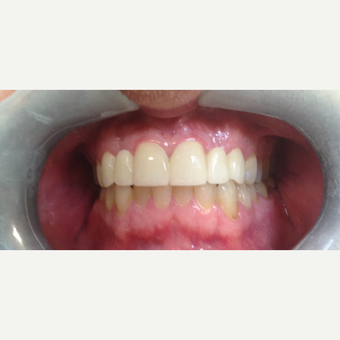 35-44 year old man treated with Smile Makeover after 3197242