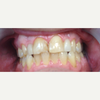 35-44 year old man treated with Smile Makeover before 3197242