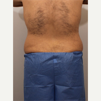 35-44 year old man treated with Liposuction before 3494180