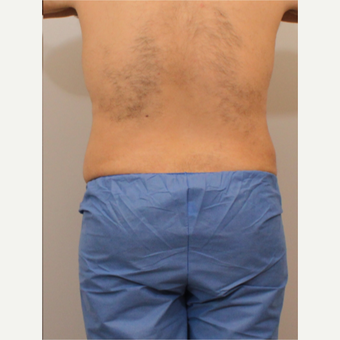 35-44 year old man treated with Liposuction after 3494180