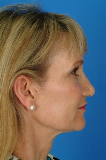 Patient interested in improving her neck, jawline and brow. after 922900