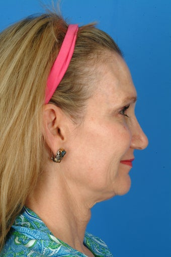 Patient interested in improving her neck, jawline and brow. before 922900