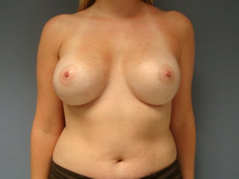 27yo Breast Augmentation Revision after 989778