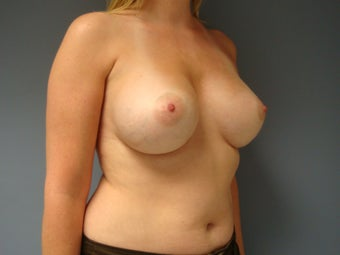 27yo Breast Augmentation Revision 989778