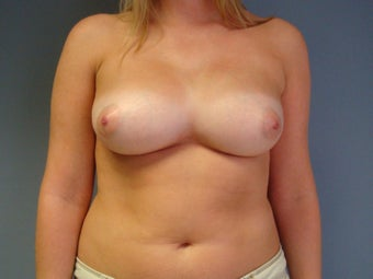 27yo Breast Augmentation Revision
