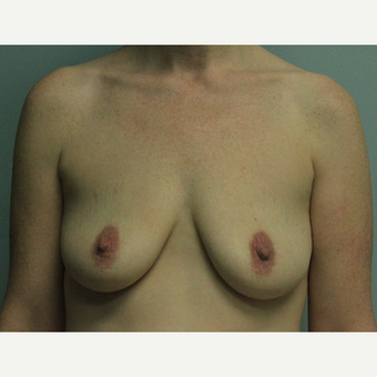 Breast Augmentation before 3561998