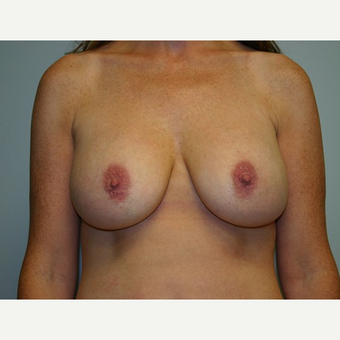 Breast Augmentation after 3561998