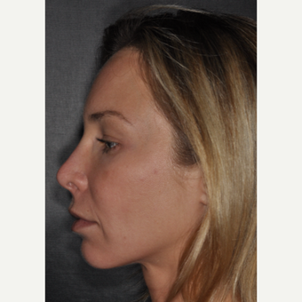 35-44 year old woman treated with Revision Rhinoplasty 2 weeks post-op before 3452242