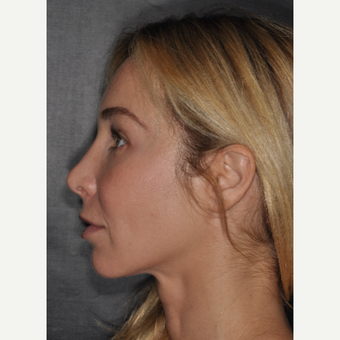 35-44 year old woman treated with Revision Rhinoplasty 2 weeks post-op after 3452242