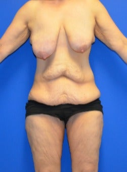 35-44 year old woman treated with Mommy Makeover before 3180294