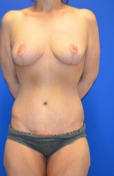 35-44 year old woman treated with Mommy Makeover after 3180294