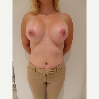 35-44 year old woman treated with Breast Implants after 3765685