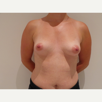 35-44 year old woman treated with Breast Implants before 3765685