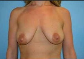25-34 year old woman treated with Breast Lift with Implants before 3482643