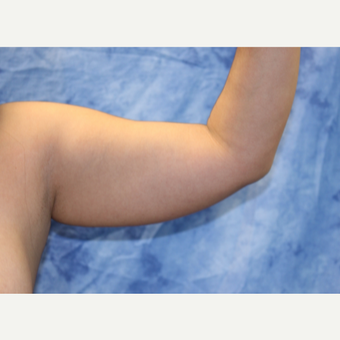 25-34 year old woman treated with Liposuction before 3330508