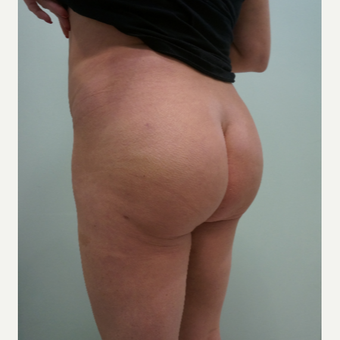 45-54 year old woman treated with Brazilian Butt Lift after 3452517