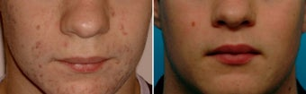 Treatment for Acne Scarring