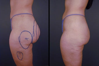 Pure Tumescent Liposuction before 996376