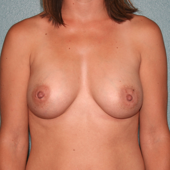 25-34 year old woman treated with Breast Augmentation after 3568214