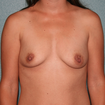 25-34 year old woman treated with Breast Augmentation before 3568214