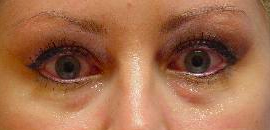 Juvederm injection in the tear troughs before 251714