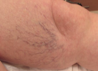 65-74 year old woman treated with Sclerotherapy 3488172