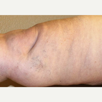 65-74 year old woman treated with Sclerotherapy after 3488172