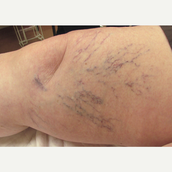 65-74 year old woman treated with Sclerotherapy before 3488172