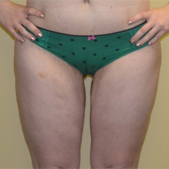 18-24 year old woman treated with Thigh Lift after 2042534