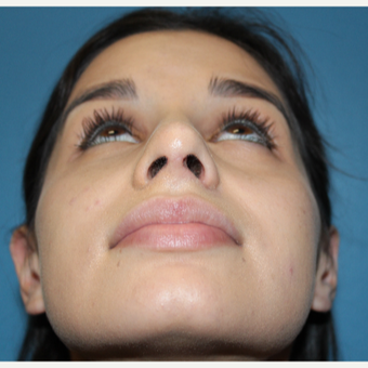 18-24 year old woman treated with Rhinoplasty after 3401968